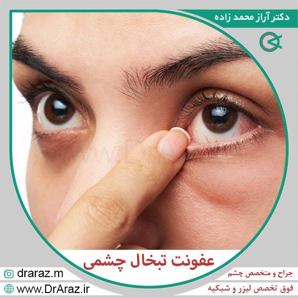 عفونت تبخال چشمی