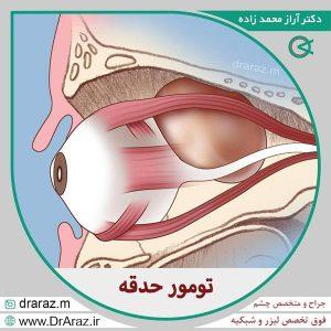 تومور پلک و حدقه