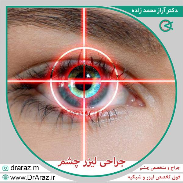 جراحی لیزر چشم