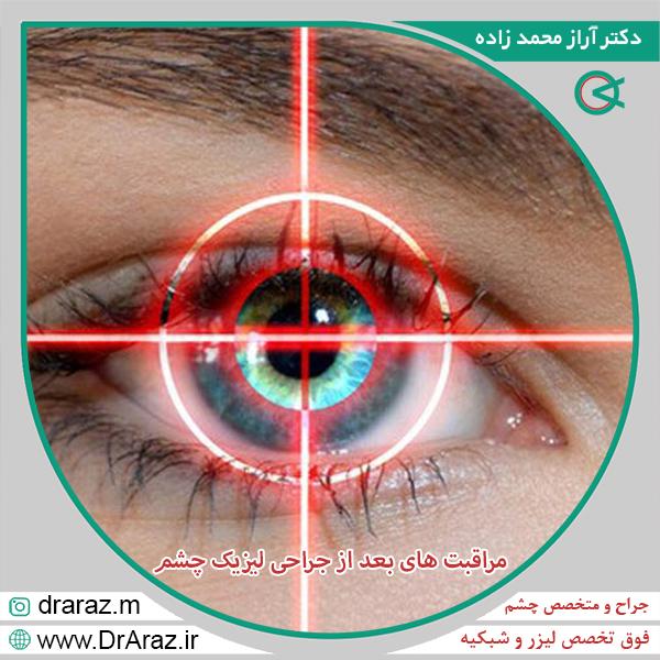 مراقبت های بعد از جراحی لیزیک چشم