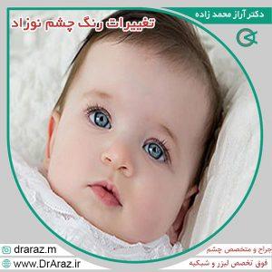 تغییرات رنگ چشم نوزاد
